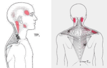 pain from the trapezius muscle