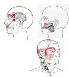 myofacial pain