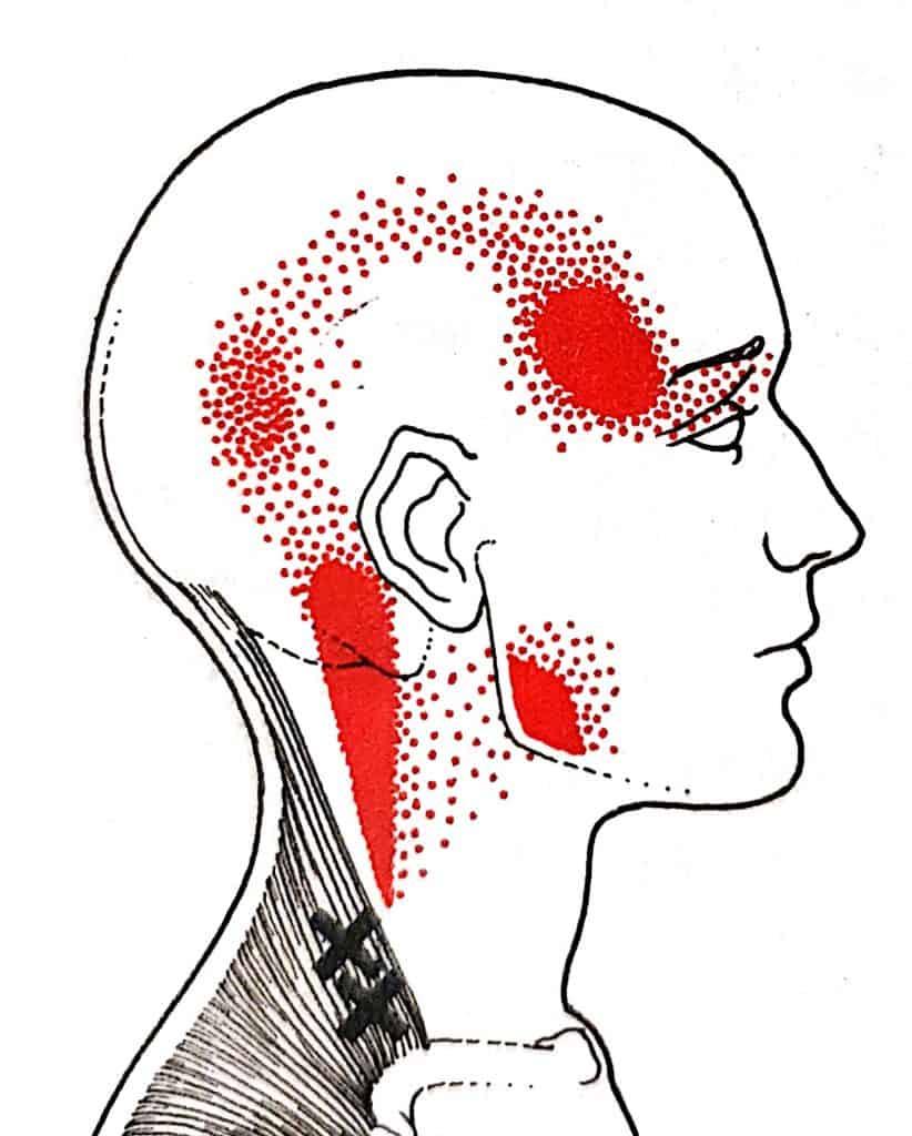 כאב ראש אחורי